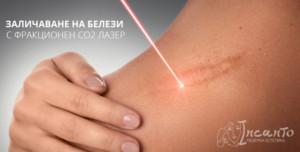 лазерна терапия